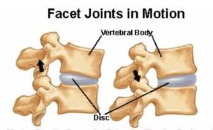 lumbar facet joint pain